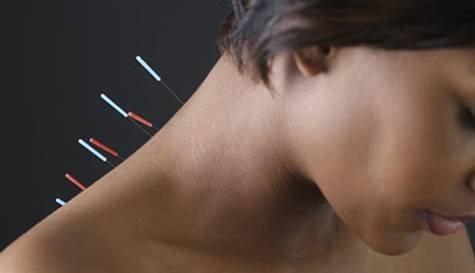 Akupunktur Plasebo Etkisi mi?